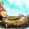 Синдром гнездования у беременных